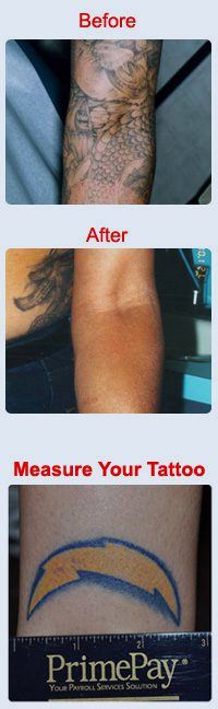 temecula-tattoo-before1