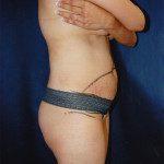 Tummy Tuck 28