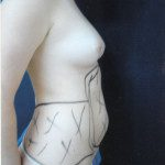 Liposuction 33