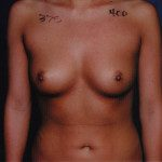 Breast Augmentation 52