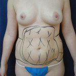 Liposuction 32