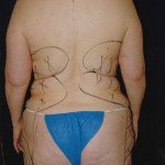Liposuction 31