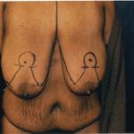 Breast Lifts 10