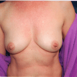Breast Augmentation 38