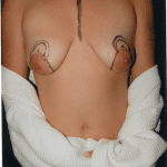 Breast Augmentation 34