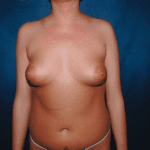 Breast Augmentation 36