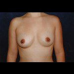 Breast Augmentation 31