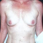 Breast Augmentation 20
