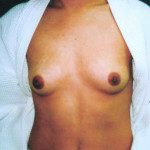 Breast Augmentation 18