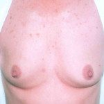 Breast Augmentation 17