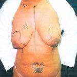 Breast Lifts 3