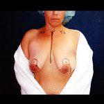 Breast Lifts 2