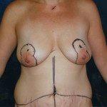 Breast Lifts 7