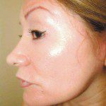 Natural Look Laser Lift
