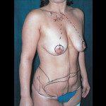 Tummy Tuck 18