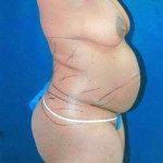 Tummy Tuck 11