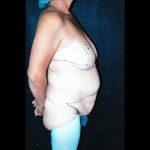 Tummy Tuck 2