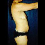 Tummy Tuck 1