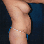 Tummy Tuck 24