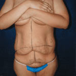 Tummy Tuck 25