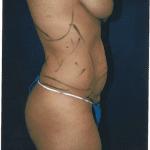 Tummy Tuck 21