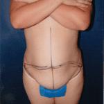 Tummy Tuck 23