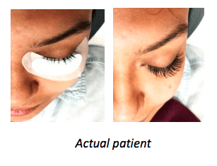 Eyelash Extensions - Before & After