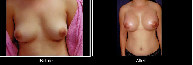 breast assymetry