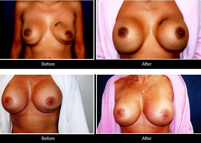 double bubble breast revision