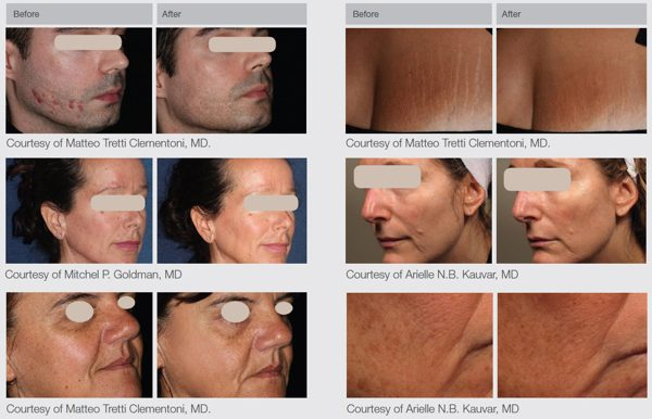 Lumenis ResurFX Laser Skin Resurfacing Treatment before and after photos
