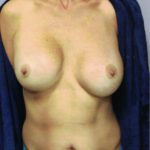 breast implant xchange 12-6