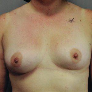 Breast Implant Xchange12-6