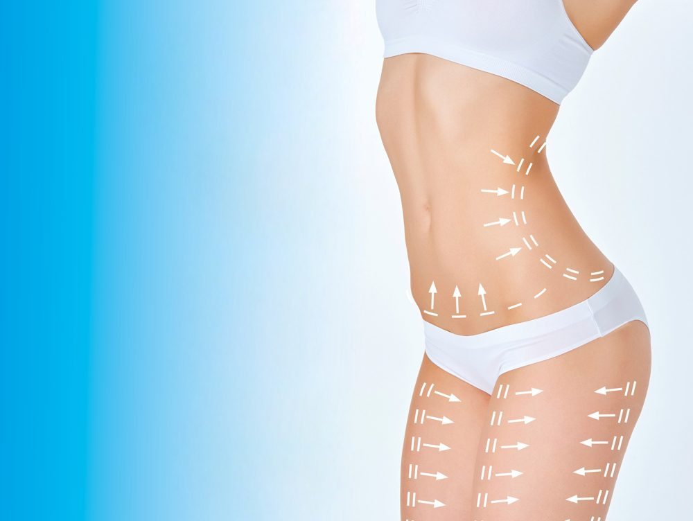 liposuction in san diego on many parts of body