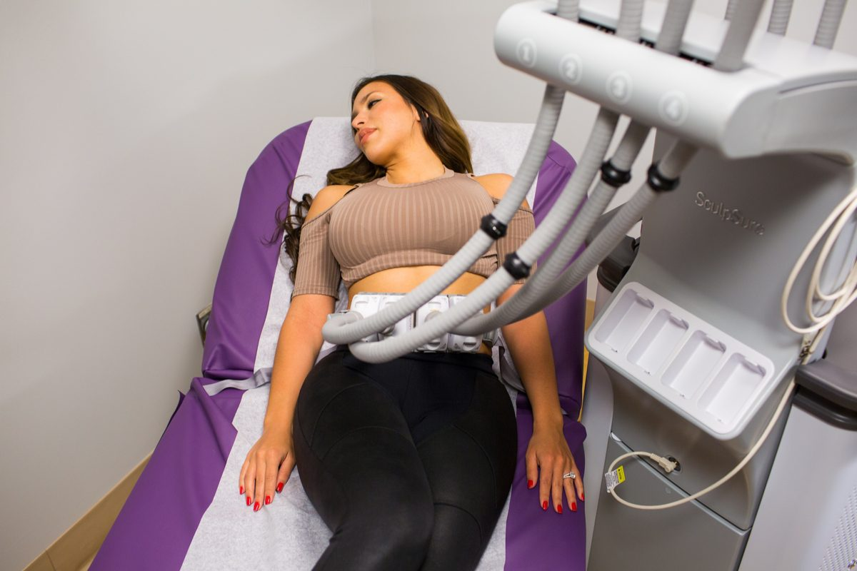 woman receiving SculpSure at San Diego Body Contouring