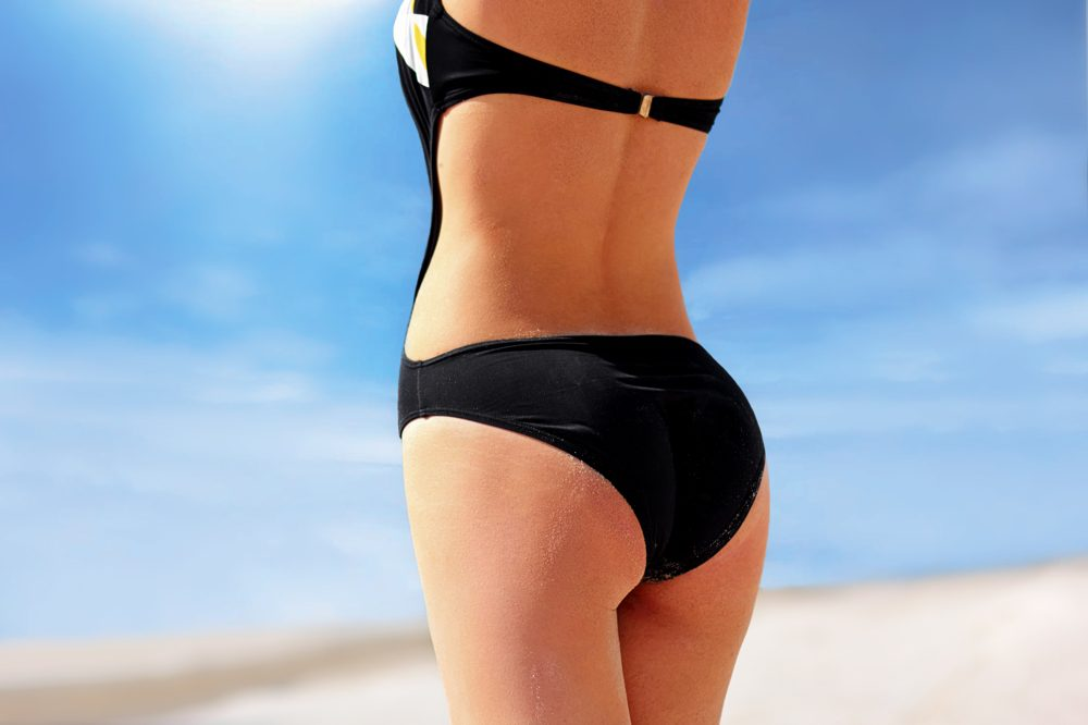 patient treated for cellulite with Cellfina at San Diego Body Contouring