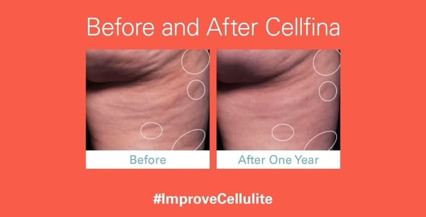Reduce Cellulite with Cellfina at San Diego Body Contouring